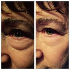 Amazing before and after picture using Instantly Ageless for under eye bags!