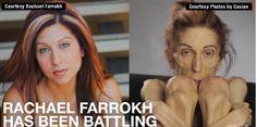 Woman Battling #Anorexia Gets Help After #SocialMedia Plea: http://www.cnn.com/2015/05/22/health/anorexia-social-media-plea-for-help/
