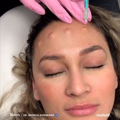 Botox can lift a drooping brow, but it has its limitations. Here's how to know when it's time to move on from Botox, and opt for a brow lift. Brow Lift Surgery, Botox Brow Lift, Eyebrow Lift, Botox Face, Botox Lips, Nose Contouring, Cheek Fillers, Botox Fillers, Face Injections
