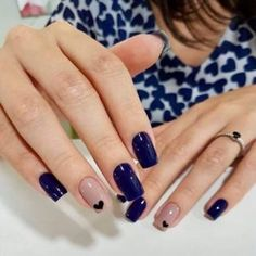 This nail art is simply amazing and easy to do # Nail Art for summers Cute Gel Nails, Shellac Nails, Cute Acrylic Nails, Luxury Nails, Pretty Nail Art, Elegant Nails, Super Nails, Perfect Nails, Trendy Nails