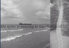 My spine is dancing to the rhythm of life (scoliosis)