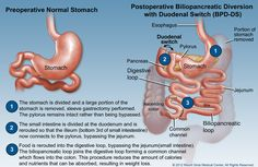 Learn about the three general reasons for revision #bariatric surgery and what can be done.