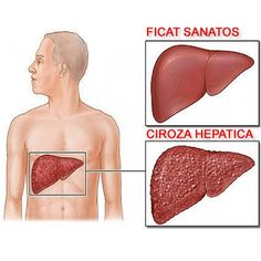 Cirrhosis diet: Cirrhosis is a disease which involves irreversible scarring of the liver. It occurs after many years of liver tissue inflammation. The causes of cirrhosis includes excessive alcohol intake, viral hepatitis B and C, exposure to. Liver Cancer, Liver Disease, Acute Disease, Kidney Disease, Natural Treatments, Natural Cures, Natural Health, Herbal Remedies, Home Remedies