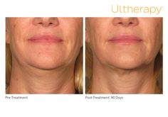 """""""Because it's ultrasound and non-invasive, I chose Ultherapy® as an alternative to surgery."""" --Diana, 62    *The non-invasive Ultherapy® procedure is U.S. FDA-cleared to lift skin on the neck, on the eyebrow and under the chin as well as to improve lines and wrinkles on the décolletage. The most common side effects reported in clinical trials were redness, swelling, pain, and transient nerve effects. For full product and safety information, visit www.ultherapy.com/IFU."""