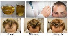 Voici comment faire repousser vos cheveux et les épaissir naturellement   Santé+ Magazine - Le magazine de la santé naturelle