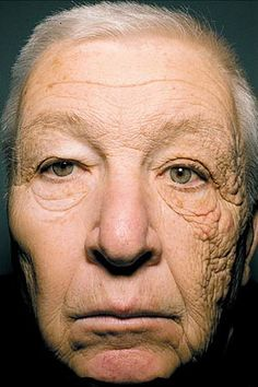 This stunning image of a 69 year old shows the effects of sun exposure on premature aging of skin. The man was a truck driver for 28 years during which the sun predominantly shined onto his face through his left window. Fitness Tips, Fitness Motivation, Health Fitness, Photo Choc, Operation, Eyes On The Prize, Natural Lifestyle, Wear Sunscreen, Stay In Shape