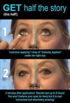 Look 10 years younger in 2 minutes with Instantly Ageless! Bye bye eye bags and wrinkles! Ayurveda, Namaste, Latina, Under Eye Bags, Les Rides, Hormonal Acne, Wellness, Puffy Eyes, Pure Beauty