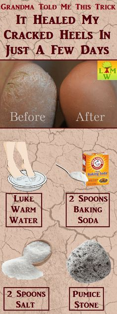 Heal Severely Cracked Heels with Baking Soda - Gesichtspflege & Fusspflege Cracked Feet Remedies, Foot Remedies, Cracked Heals Remedy, Health Remedies, Natural Remedies, Heal Cracked Heels, Dry Cracked Feet, Beauty Care, Beauty Skin