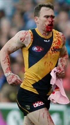From yesteryear, Nathan Foley leaves the ground under the blood rule after a heavy collision Sports Games, Sports Humor, Richmond Football Club, Australian Football League, Football Memes, Athletic Men, Sport Man, Male Body, Yellow Black