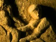 Ursprung der Technik - Pioniere der Medizin - Heilkunst im alten Rom