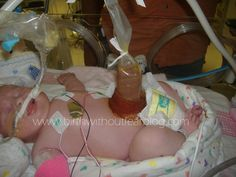 a vaginal gastroschisis birth. I will be having a doula!