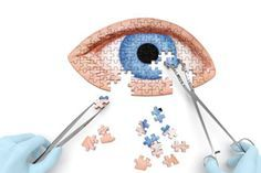 Discover the 9 possible treatment options for keratoconus.