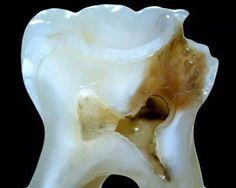 Top Oral Health Advice To Keep Your Teeth Healthy – Best Teeth Whitening Techinque Dental Life, Dental Art, Dental Humor, Dental Hygienist, Tooth Caries, Dental Images, Teeth Dentist, Dental Veneers, Best Teeth Whitening