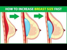 Tummy tuck procedure best way to increase breast size naturally,brazilian breast implants breast before and after,breast enhancement stories breast enhancement workout. Natural Beauty Tips, Health And Beauty Tips, Buttocks Workout, How To Get Bigger, Beauty Games, Health Trends, Healthy Tips, Skin Care Tips, Breast