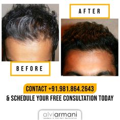 Come to the newly opened clinic at Indore and gain more insights about the non-invasive hair transplant. Call us at to book a free consultation today! Hair Transplant In India, Best Hair Transplant, Armani Hair, Natural Hair Care, Natural Hair Styles, Lip Fillers, Indore, Hair Restoration, Beverly Hills