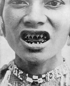 Sharpened human teeth, traditional in parts of S Asia including Indonesia & the Philippines