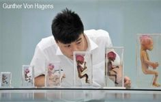 Gunther Von Hagens, Illustration, Playing Cards, Animals, The Body, Animales, Animaux, Playing Card Games, Animal