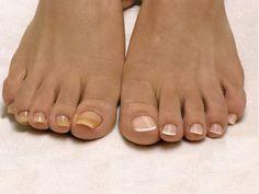 Пожелтение и отслаивание ногтевой пластины, появление трещинок и зуд между пальцами —симптомы грибковой инфекции. Статистика свидетельствует, что каждый 5-й житель Земли страдает от этой проблемы. …