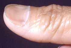 Koilonychia (spoon shaped nails)  -Iron deficiency  -Diabetes mellitus  -Protein deficiency  -petroleum-based solvents  -SLE  -Raynaud's disease