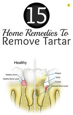 15 Amazing Home Remedies To Remove Tartar : Brushing teeth every day, proper flossing, oral hygiene, regular dental checkups are important to maintain good oral health. Neglecting any of these can really create a havoc on teeth and gums. (Great ways to prevent, slow down, or reverse tartar devlopment)