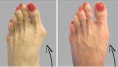 Why do Doctors Keep this Simple Recipe away from the Public? Here's how to get rid of Bunions Completely Natural – 1K Recipes!