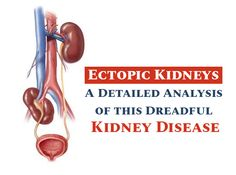 #Ectopic #Kidneys – A Detailed #Analysis of this #Dreadful #Kidney #Disease