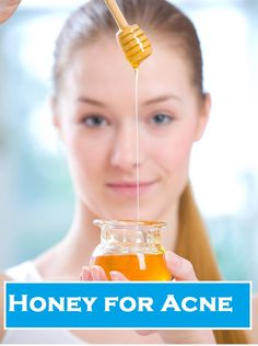Honey Acne Treatment