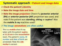 Chest x ray fundamentals Concept Map Nursing, Silhouette Sign, Cranial Nerves, Medical Students, Study Tips, Anatomy, Learning, Image, Medicine