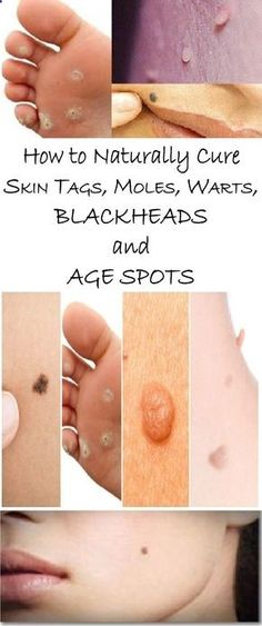 We all have some kind of skin problems. They are quite common and people from all ages can be affected by them. Some of the most common skin conditions are tags, warts, moles and dark spots, but there are more than 3000 other skin problems that a person may experience.