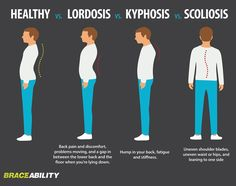 Do You Have a Curved Spine? How lordosis, kyphosis and scoliosis differ from other spinal disorders Kyphosis Exercises, Scoliosis Exercises, Posture Exercises, Lumbar Lordosis, Anatomy Back, Curved Spine, Spinal Stenosis, Spine Health, Nursing Notes