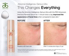 Genius Ultra Device by Arbonne! Newest product in our collection! Whitneywindschitl.arbonne.com
