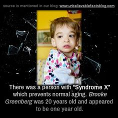 """"""" there is one person in the world with """"Syndrome X"""" which prevents normal aging. Brooke Greenberg is 20 and appears to be one year old. """""""