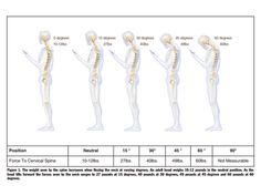 Gewichtsbelastung für die Halswirbelsäule | (c) K. Hansraj