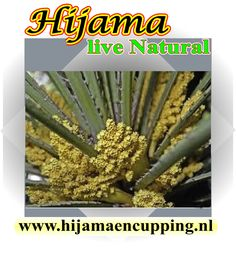 #Hijama #Cupping #Hirudotherapie #Roqya #Zwangerschap #Haaruitval