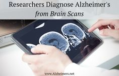 Researchers Diagnose Alzheimer's from Brain Scans