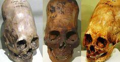+ - Os famosos crânios de Paracas têm sido considerados por muitos como sendo o elo perdido da origem humana. Desde que foram descobertos pelo arqueólogo peruano Julio Telle, em 1928, na península desértica de Paracas, costa sul do Peru, estes crânios têm criado muita comoção na comunidade científica. Durante as escavações, Tello desenterrou um …
