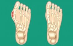 A bunion is a painful bony bump that develops on the inside of the foot at the big toe joint. Bunions are often referred to as hallux va. Bunion Relief, Pain Relief, Toe Injuries, How To Cure Gout, Foot Exercises, Foot Pain, Injury Prevention, Feet Care, Big Toe