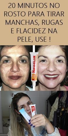 How To Make, Hair, Beauty, Beauty Tips For Men, Natural Beauty Hacks, Face Wrinkles, Spots On Face, Face Creams, Recipes