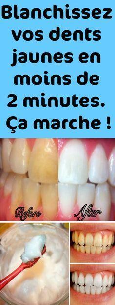 Blanchissez vos dents jaunes en moins de 2 minutes. Ça marche !