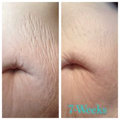 Firm addresses stretch marks better than any other product out there. 30-Day money back guarantee.   vickicameron.nerium.com