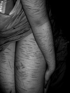 can you still model with self harm scars and dating