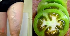Getting rid of varicose veins with green tomatoes Green Tomatoes, Varicose Veins, Diet And Nutrition, Natural Cures, Cucumber, The Cure, Pickles, Food And Drink, Health Fitness