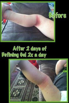 Do you suffer with eczema? Our all natural defining gel can help! Shop at www.pariswrapslw.com