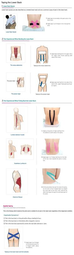 Kinesio Taping Instruction For Back Pain: psoas exercises stretching
