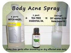 Body Acne Spray: simple, cheap DIY version that works!