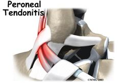 www.orthogate.org - peroneal tendonitis - a good explanation and images