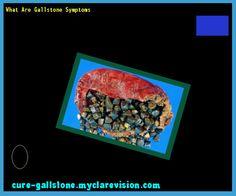 What Are Gallstone Symptoms 154606 - Cure Gallstone