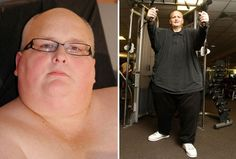 World's Fattest Man Sheds 644 Pounds [Photos]