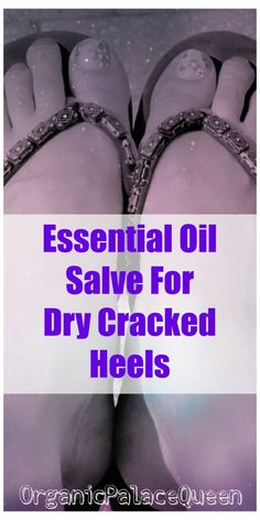 Essential oil recipe for cracked heels.