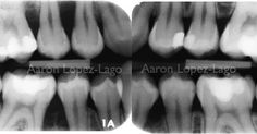 18 years old patient suffering #aggressive_periodontitis and several #caries. Early diagnosis can avoid a large loss of periodontal attachment. #periodontitis #dentistry #immunology #oralhealth #periodontology #periodoncia by alopezlago Our Dental Services Page: http://www.lagunavistadental.com/services/ Google My Business: https://plus.google.com/LagunaVistaDentalElkGrove/about Our Yelp Page: http://www.yelp.com/biz/fenton-krystle-dds-laguna-vista-dental-elk-grove-3 Our Facebook Page…